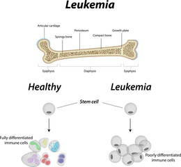 Leukemia Bone