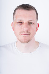 Mann mit blauem Auge