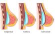 Arten von Brustvergrößerungen