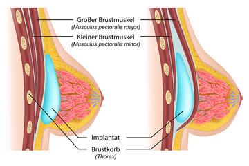 Brustvergrößerung mit Erklärung, deutsch
