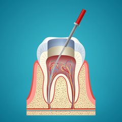 Dental injection in cutaway