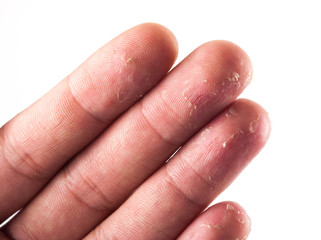 Closeup of Eczema Dermatitis on Back of Fingers