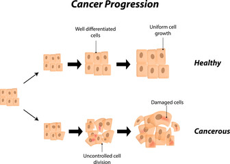 Cancer Progression