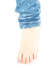Little girl with a blue nail on hallux toe