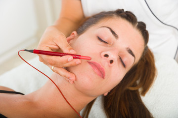Attractive female patient receiving electro acupuncture on face