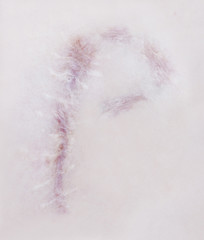 Scar letter P on human skin