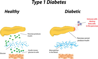 Type 1 Diabetes Labeled Diagram
