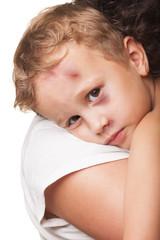 Beaten boy