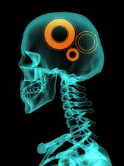 Xray of skull with gears.