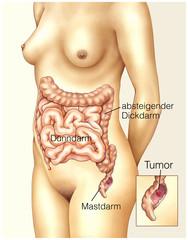 Tumor im Mastdarm
