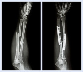 Fracture both bone of forearm. It was operated,internal fixed