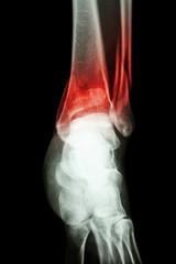 fracture distal tibia and fibula (leg's bone)