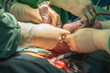 Operation for cesarean section with new born infant in operating