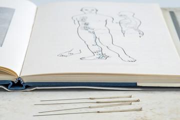 Akupunkturnadeln mit Lehrbuch