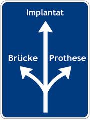 Brücke, Prothese oder Implantat