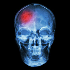 """Stroke"" (Cerebrovascular accident)"