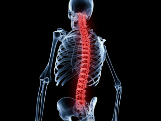 Back Pain, Spine