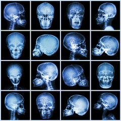 Collection x-ray skull (asian people)