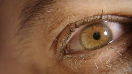 Eye red sick macro 1