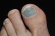 blue toenail