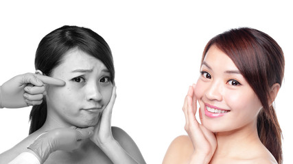 Skin Care woman after and before