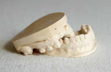 Dental gypsum model mould of teeth