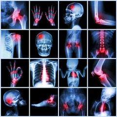 X-ray multiple part of human and Arthritis,multiple disease