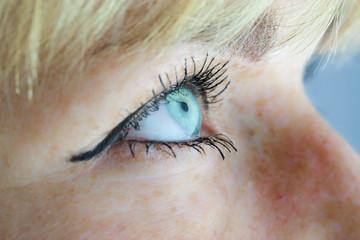 Blaues Auge seitlich