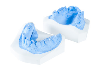 teeth moldel on isolated white background