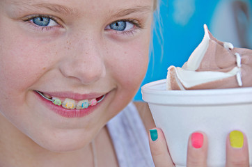 Girl with orthodontic smile and ice cream