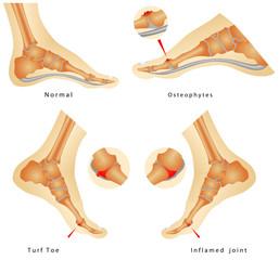 Turf Toe Injuries