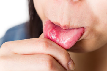 Woman suffer from mouth aphtha