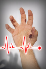 Hand expressing heart attack - Medical concept