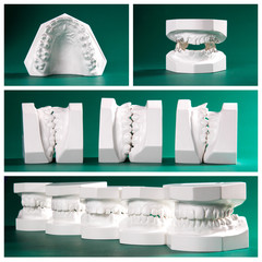 Compilation picture of dental study models on green background