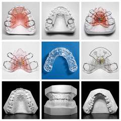Essix retainer surrounded by orthodontic appliances and models