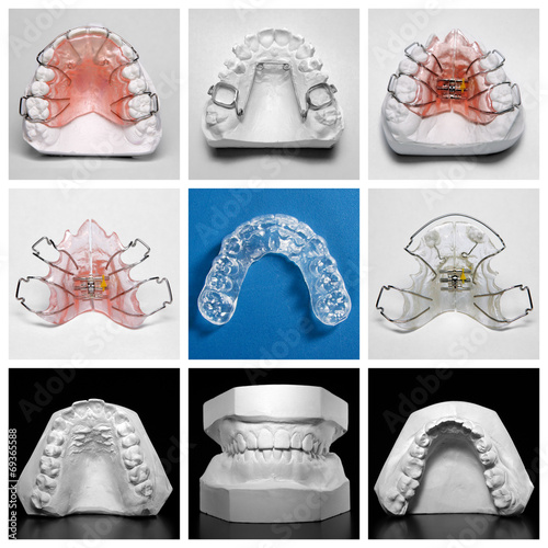 Essix retainer surrounded by orthodontic appliances and models - 69365588