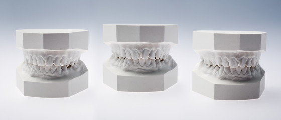 Front view of a plaster study models on white background