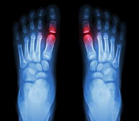 """""""Rheumatoid arthritis , Gouty arthritis"""""""