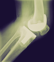 Retro look Bicompartmental knee prosthesis xray