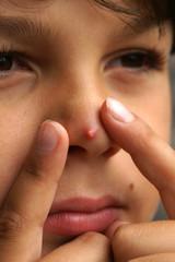 Kind drückt einen Pickel auf der Nase aus
