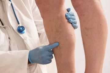 traitement médical des varices