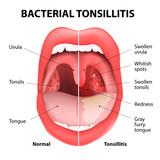 Fototapety Tonsillitis bacterial