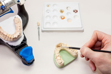 Making Facial Dental Prosthetic.