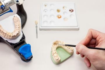Making Facial Dental Prosthetic.