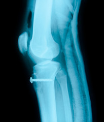 Right knee joint and Medical equipment X-ray