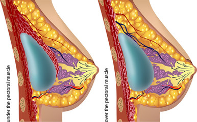 Plastic surgery of breast implants. Vector