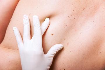 Vorsorge Untersuchung von Hautarzt