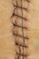 suture macro