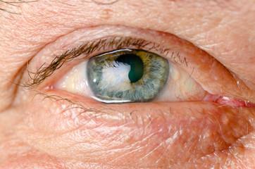occhio azzurro e giallo