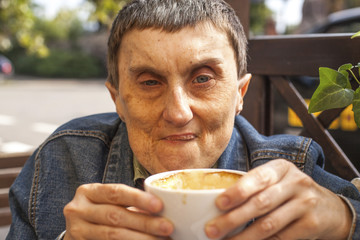 Closeup portrait of elderly disabled man with cerebral palsy